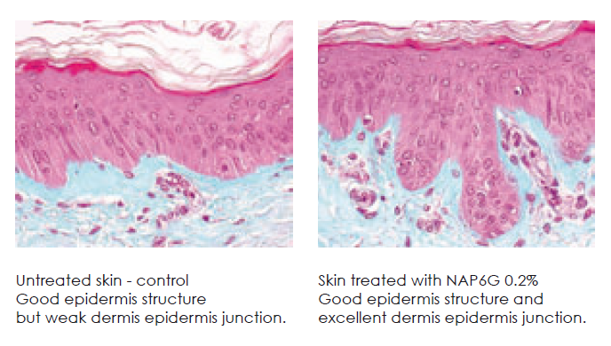 NAG6P EX VIVO Reorganization and restructuring of dermis epidermis jucntion after 10 days on humna skin